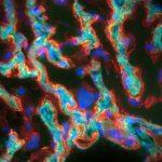 Coupe de placenta de rongeur infecté par Listeria monocytogenes