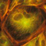 Cellule formant la paroi des vaisseaux sanguins en culture