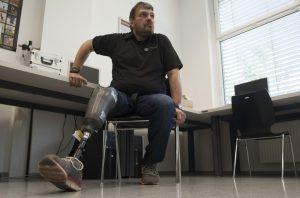 Wolfgang Rangger, premier amputé de la jambe a bénéficier de la prothèse sensible du professeur autrichien Hubert Egger. © AFP photo
