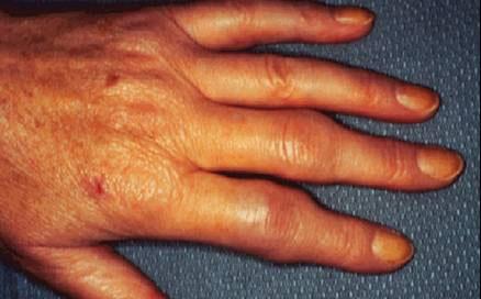 Polyarthrite rhumatoïde : le sarilumab, nouvelle molécule pour patients intolérants aux thérapies actuelles
