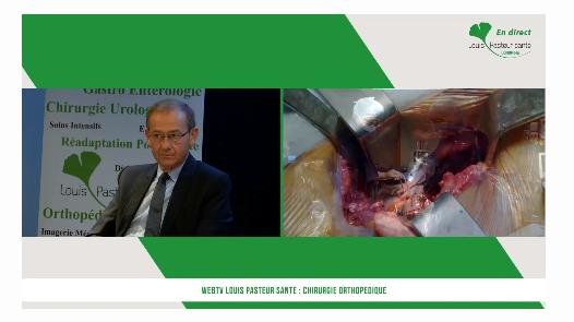 prothèse hanche web TV Pasteur