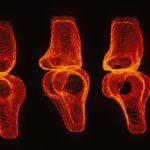 Reconstruction en trois dimensions du genou. © Inserm, MC Hobatho
