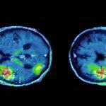 Accident vasculaire cérébral ischémique : les taches colorées montrent les régions cérébrales touchées par l'AVC © Inserm/Ribeiro, Maria-Joao