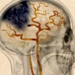 """Dans 80 % des cas, l'AVC est un """"infarctus cérébral"""" dû à un caillot sanguin qui entraîne l'asphyxie et la mort de milliers de neurones. © Arte"""