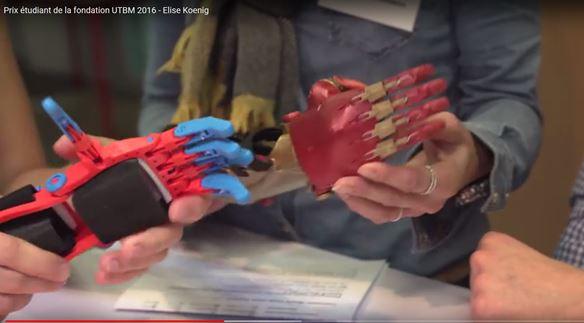 Élise imprime un avant-bras en 3D pour Marius