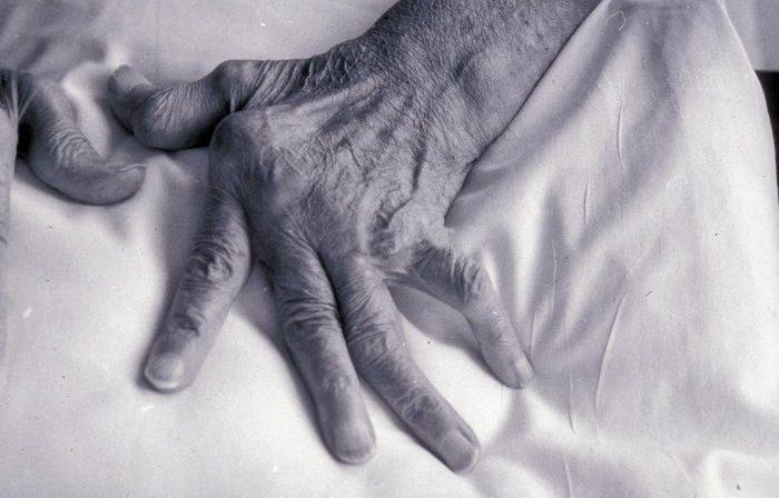 Polyarthrite rhumatoïde.